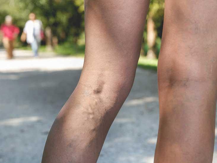 varicose vein treatment adelaide